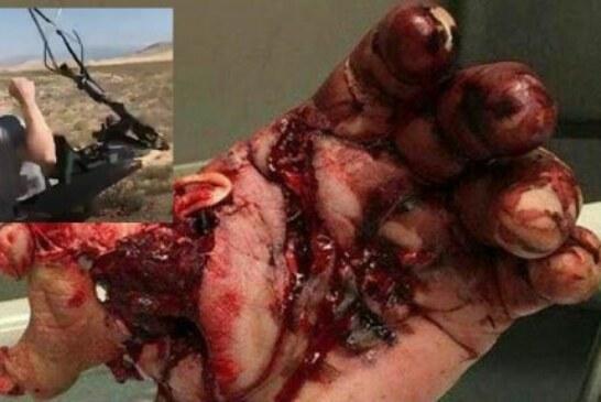 Impactante vídeo del reventón de un rifle en las manos de un tirador