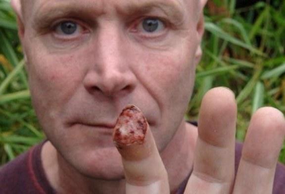 Jabalí se come el dedo índice de un paseante en un bosque de Inglaterra