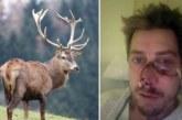 Francia: Ciervo ataca a un cazador y le deja una tremenda cicatriz en su cara